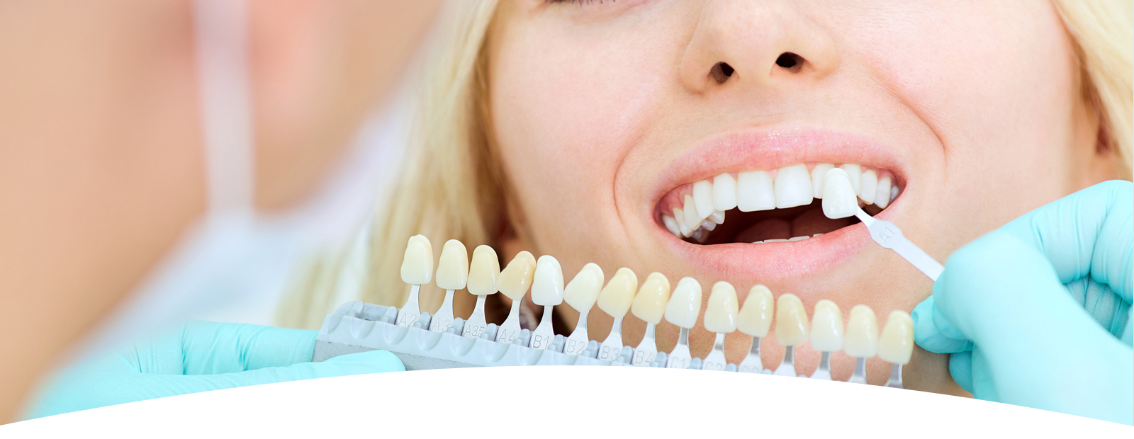 Woman teeth whitening concept