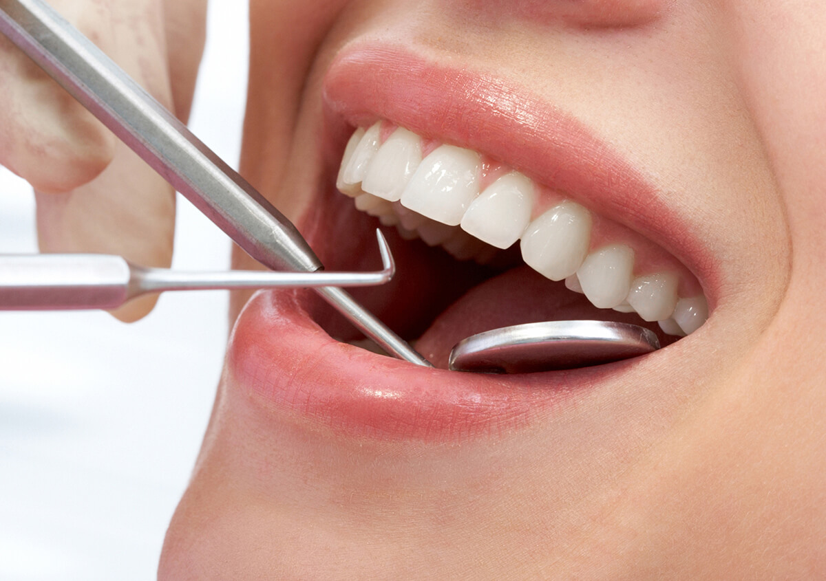 The Importance of Dental Crowns for Teeth